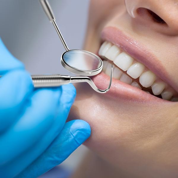 Dental Extraction Clover Dental