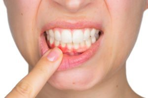 gingivitis-treatmet-at-clover-dental
