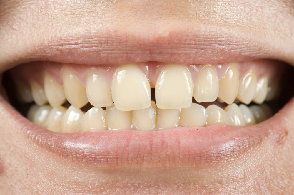 tooth-discoloration-treatment-brunswick